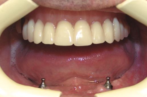 Съемные зубные протезы на имплантах верхней челюсти